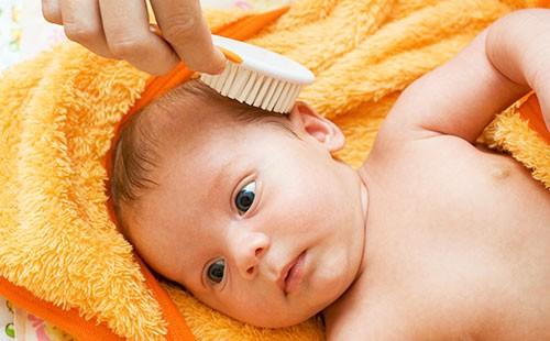 Корочка на голове у новорожденного — избавляться или переждать?