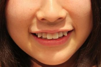 Дистопированный зуб: что это такое. Фото с сайта daylinews.su