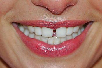 Щель между зубами: как убрать и стоит ли. Фото с сайта www.metronews.ru