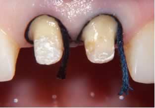 Ретракция десны: для чего нужна. Фото с сайта http://www.implant.ru