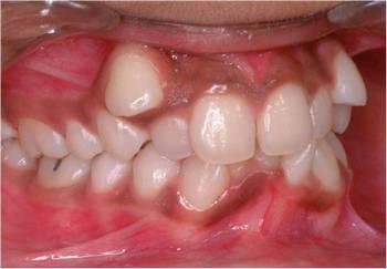 Тортоаномалия. Что делать? Фото с сайта http://dentaldaily.ru