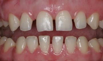 Тремы: что это и как исправить дефект. Фото с сайта http://www.lazurmedical.ru