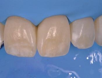 Почему на зубах появляются белые пятна. Фото с сайта dental-revue.ru