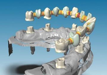 Абатмент: для чего он нужен в протезировании зубов. Фото с сайта http://www.ms3ds.com