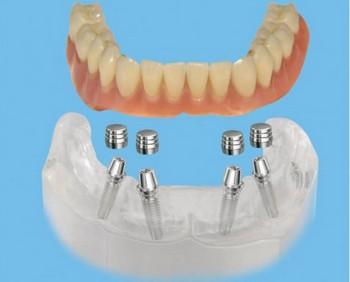 Покрывной зубной протез: плюсы и минусы. Фото с сайта http://akbars-bank.ru