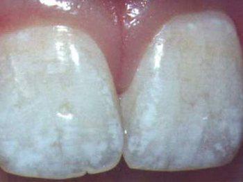 Флюороз: симптомы и лечение. Фото с сайта www.liderstom.ru