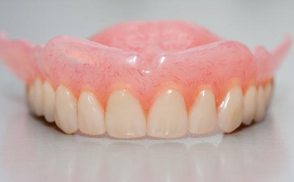 Силиконовый зубной протез: характеристика. Фото: Zsolt Bota Finna - Fotolia.com