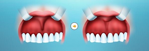 Уздечка верхней губы до и после операции. Фото с сайта http://www.startsmile.ru