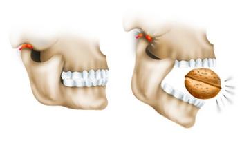 Вывих челюсти: что делать? Фото с сайта http://alatus.ru