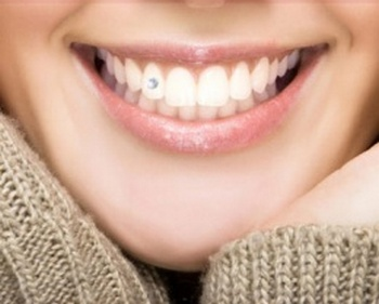 Все о cтразах на зубах. Фото с сайта http://www.kuponika.ru