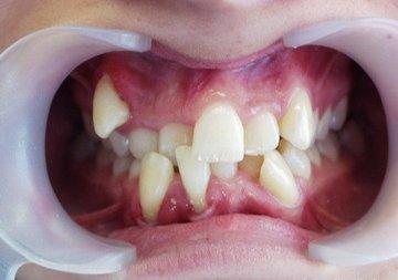 что желать с клыком над зубом