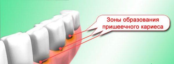Зоны образования пришеечного кариеса. Фото с сайта http://www.adent.ru/