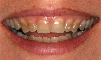 Так выглядят тетрациклиновые зубы. Фото с сайта kirillkostin.ru