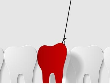 Зуб удалили и течет кровь. Фото: ieromina - Fotolia.com