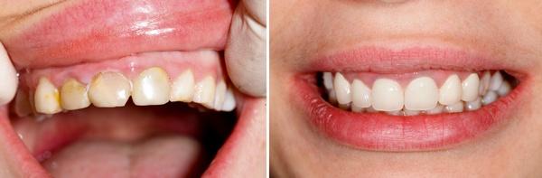 Цвет коренных зубов у детей