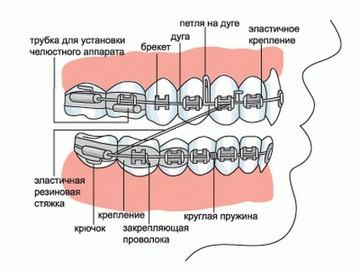 Для чего в брекетах лигатура? Фото с сайта http://denta.dostalet.ru