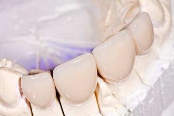 Циркониевые коронки — новая стоматология Фото: Zsolt Bota Finna - Fotolia.com