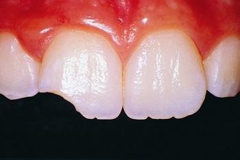 Откололся зуб: что делать? Фото с сайта http://semdent.ru