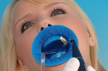 Коффердам в стоматологии. Фото с сайта old.medco.ru