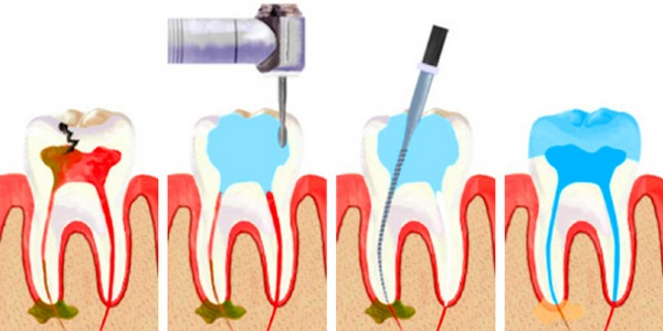Как происходит удаление зубного нерва. Фото с сайта http://stelladent.ru