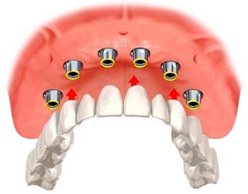 Протез на имплантах. Фото с сайта dent-smile.ru