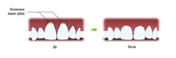 Что такое гингивопластика. Фото с сайта http://dentalmir.ru