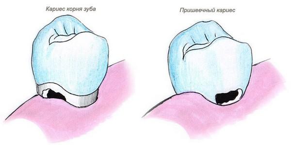 Пришеечный кариес. Фото с сайта http://www.budzdr.ru