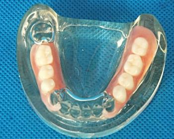 Что такое мягкие зубные протезы. Фото с сайта http://zubzubov.ru