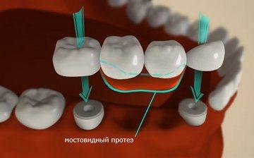 Так выглядит мостовидный протез. Фото с сайта qstoma.ru