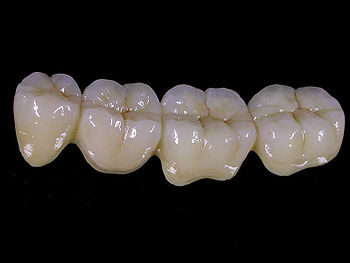 Металлокерамический съемный протез. Фото с сайта www.wikident.ru