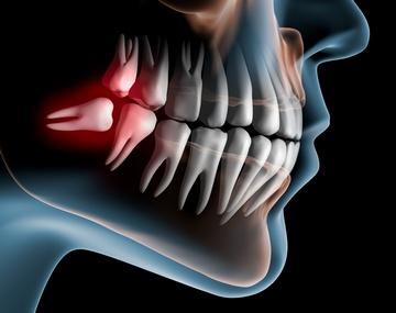 Зубы мудрости, один из которых растет горизонтально. Фото: psdesign1 - Fotolia.com