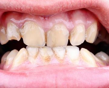 Кариес на передних зубах: как лечить. Фото с сайта adam88xx - Fotolia.com