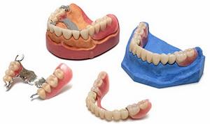 Чем отличаются мягкие зубные протезы от бюгельных. Фото с сайта http://www.stomport.ru