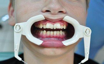 Сверхкомплектные зубы: что с ними делать. Фото с сайта www.dental-guide.ru