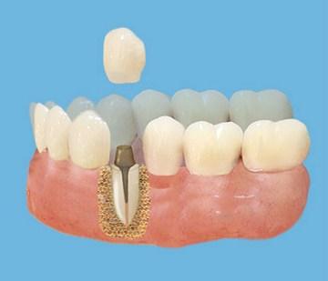 Что представляет из себя культевая вкладка. Фото с сайта http://implantis.com.ua