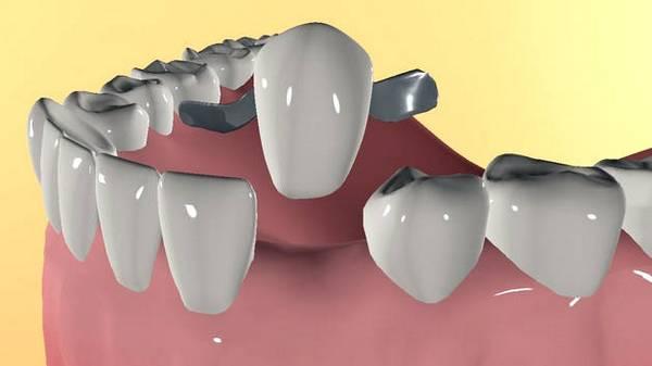 Адгезивный зубной протез. Фото с сайта topdent.ru