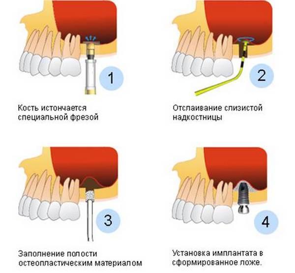 Что такое синус-лифтинг. Фото с сайта http://www.ermak-stom.ru