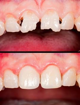 Крошатся зубы на верхнем изображении, здоровые — на нижнем. Фото: Zsolt Bota Finna - Fotolia.com