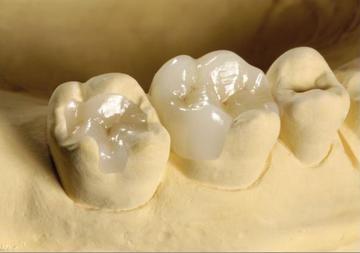 Что такое зубные вкладки. Фото с сайта www.ligastom.ru