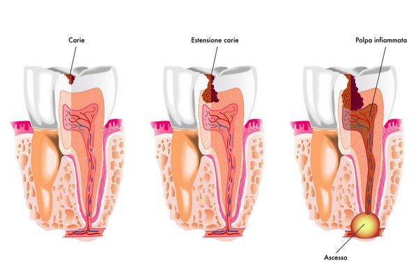 На последнем фто абсцесс зуба. Фото: rob3000 - Fotolia.com