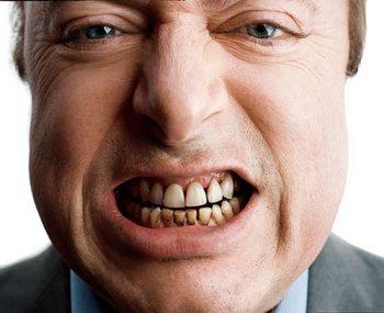 Черный налет на зубах: как лечить. Фото с сайта http://onlyformans.ru