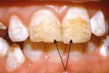 Гипоплазия эмали: как проявляется и чем опасна. Фото с сайта http://provizor.org