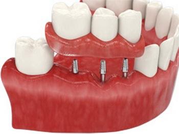 Базальная имплантация зубов: плюсы и минусы. Фото с сайта zubi-implanti.ru