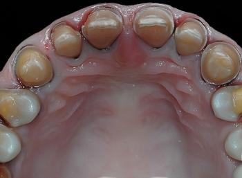 Почему гипоплазия молочных зубов — это серьезно? Фото с сайта http://mm-dd.ru