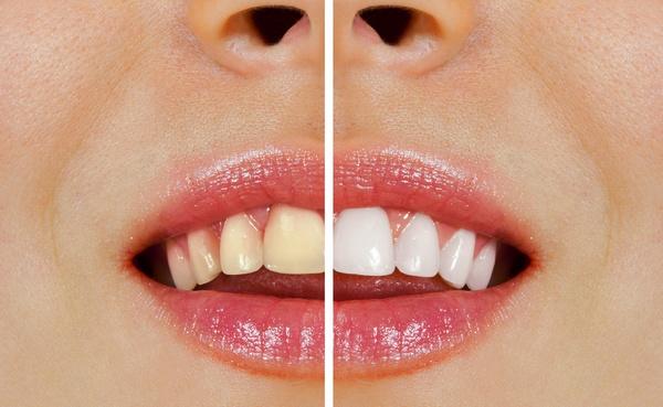 процесс установки виниров на зубы