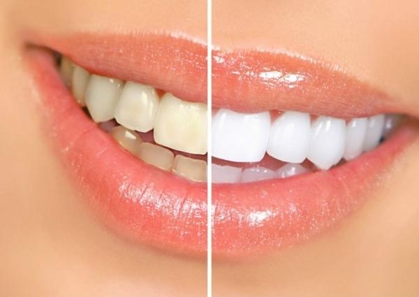 Желтые зубы до и после отбеливания. Фото с сайта http://www.gudriem.lv
