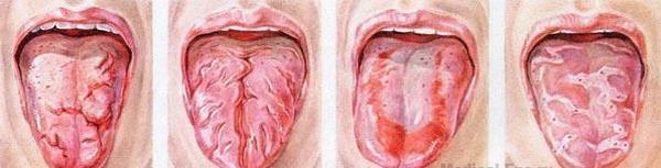 Глосситы языка. Фото с сайта http://www.medical-enc.ru